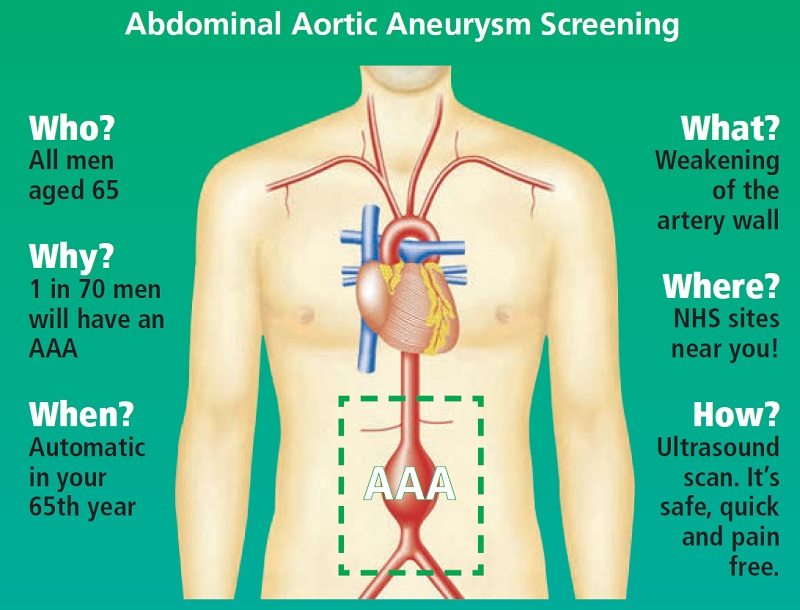 Abdominal Aortic Aneurysm Screening
